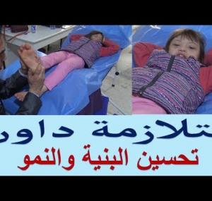 Embedded thumbnail for متلازمة  داون علاج الاطفال REFLEXOLOGY FOR Down syndrome