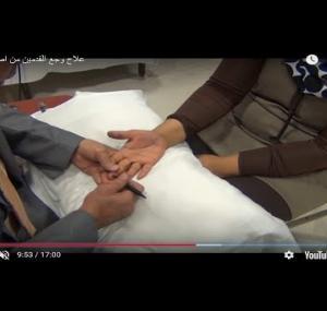 Embedded thumbnail for  علاج وجع القدمين من اصابع اليدين