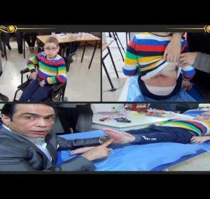 Embedded thumbnail for علاج الشلل عند الأطفال